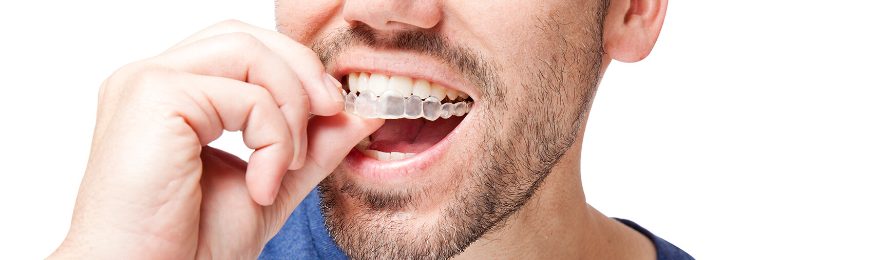 man inserting his Invisalign clear aligners onto his teeth